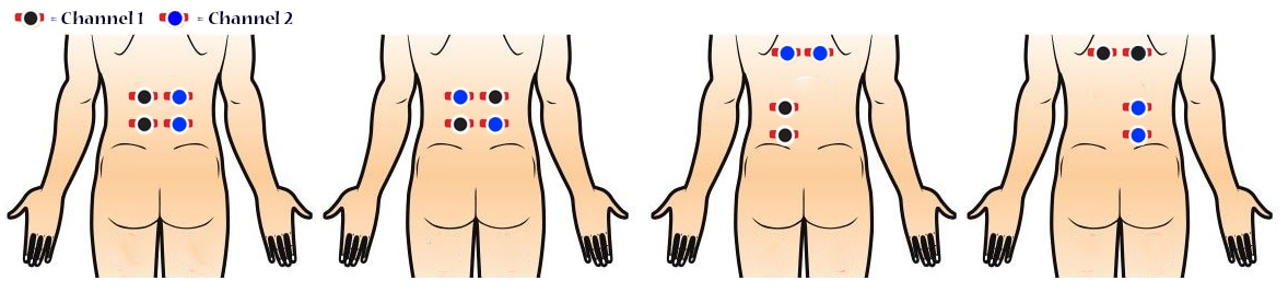 How Do I Place my TENs Machine's Electrode Pads for lower back pain and labour